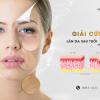 Bí quyết chống lão hóa, giữ thanh xuân từ bên trong nhờ bổ sung collagen