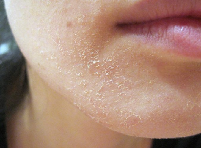 Làn da bị khô bong tróc vào mùa đông