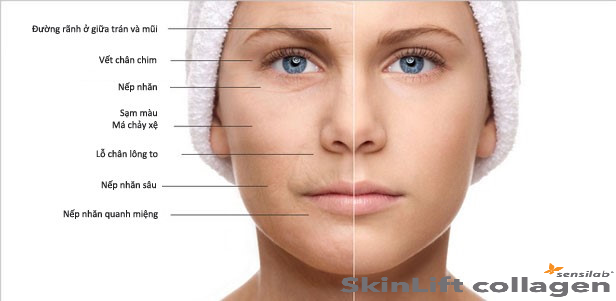 Dấu hiệu lão hóa da -SkinLift collagen chống lão hóa da