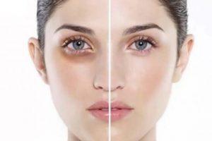 Bọng mắt dấu hiệu lão hóa da - skinLift collagen