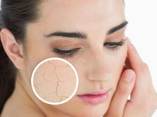Hiện tượng của da khô là dấu hiệu của lão hóa da-skinLift collagen