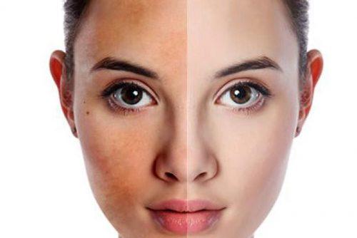 Làn da bị sạm màu dấu hiệu của lão hóa da -skinLift collagen