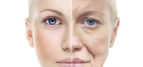 Lựa chọn kem dưỡng chống lão hóa da tôt - SkinLift Collagen