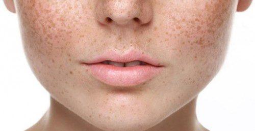 Nám da- skinLift collagen chống lão hóa da