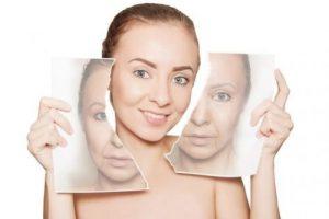 Phục hồi làn da bị lão hóa - SkinLift collagen