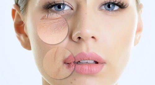 Cách chọn máy rửa mặt cho làn da hỗn hợp