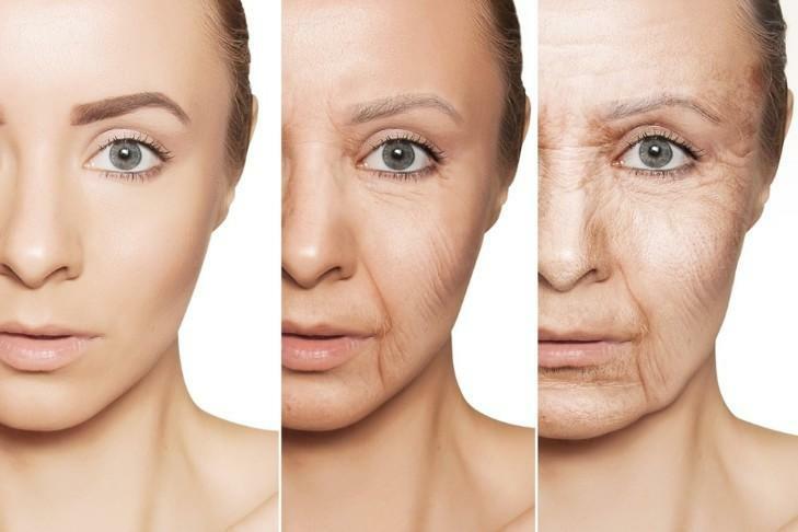 Thiếu hụt collagen: Nỗi lo không của riêng ai