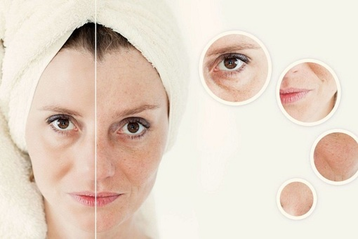 Thiếu hụt collagen: Nỗi lo lắng của tất cả chị em phụ nữ
