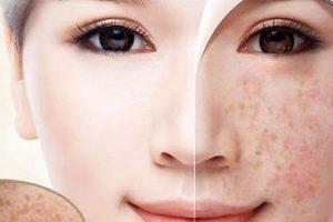 Cách lựa chọn kem trị da nám tàn nhang tốt hiệu quả