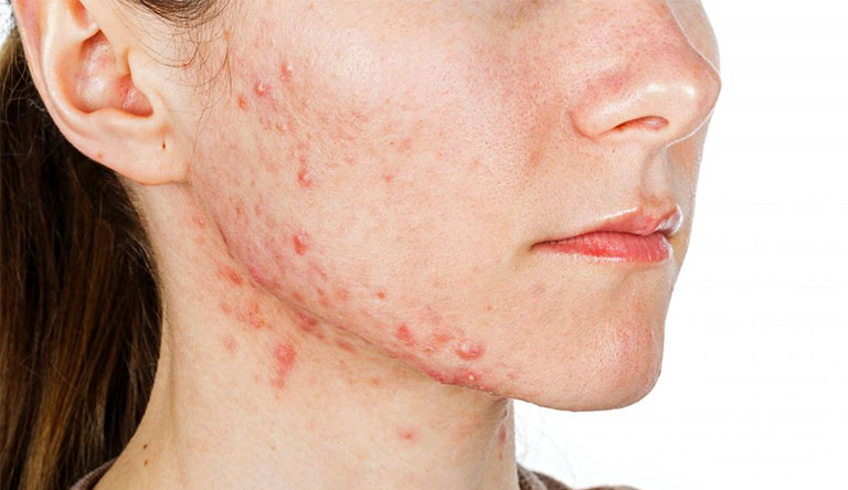 5 tác hại của kem trộn với da không phải ai cũng biết