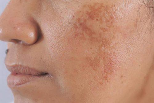 Skinlift Collagen trị nám tốt hay không?