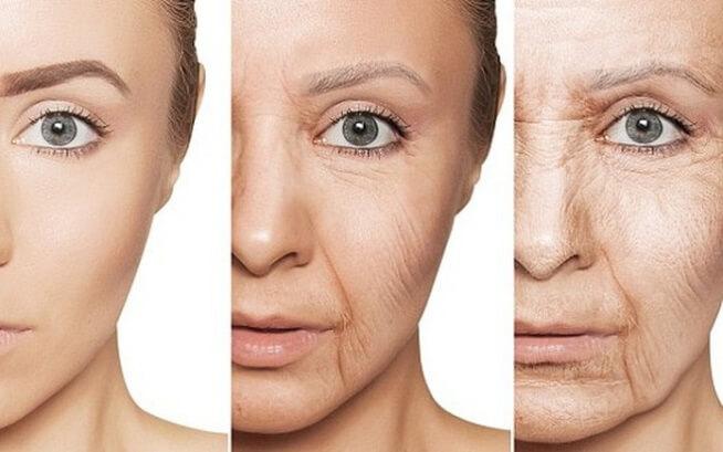 Uống collagen làm đẹp da có gây nổi mụn không?