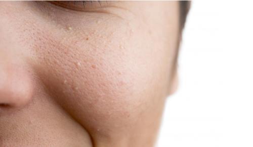 5 biểu hiện thừa collagen mà bạn không nên bỏ qua