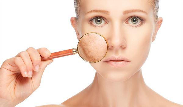 Dấu hiệu bị tàn nhang khiến làn da trở nên kém sắc