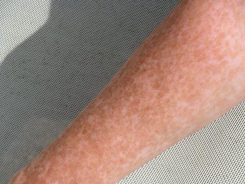 Mách bạn cách loại bỏ các vết nám tàn nhang ở tay