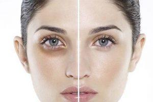 Nguyên nhân xuất hiện quầng thâm mắt và cách cải thiện hiệu quả