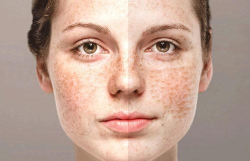 Nám da ở tuổi 20 - Nguyên nhân và cách khắc phục như thế nào?