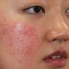 Top 7 cách nhận biết da mặt yếu mà bạn cần lưu ý