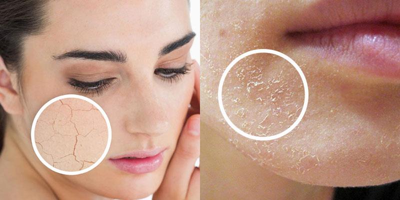Vì sao da mặt bị bong tróc? Cách khắc phục hiệu quả