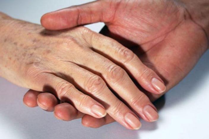 Xuất hiện đốm nâu trên da tay ở tuổi 50 phải làm sao?