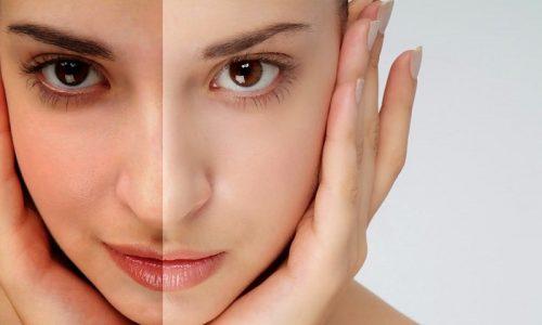 Cách chữa da bị sạm nám do nắng ở tuổi 30 tại nhà có khó không?