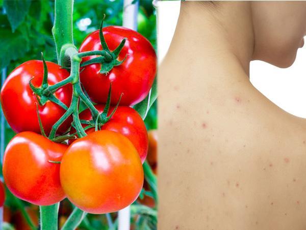 Điểm danh 3 cách trị mụn lưng bằng cà chua cho tuổi 40