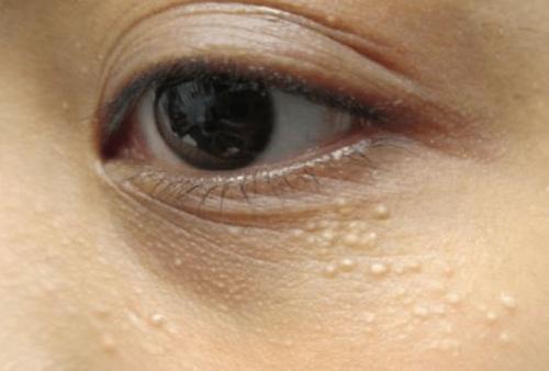 Làm cách nào để bạn giải quyết vấn đề mụn thịt quanh mắt ở tuổi 50?