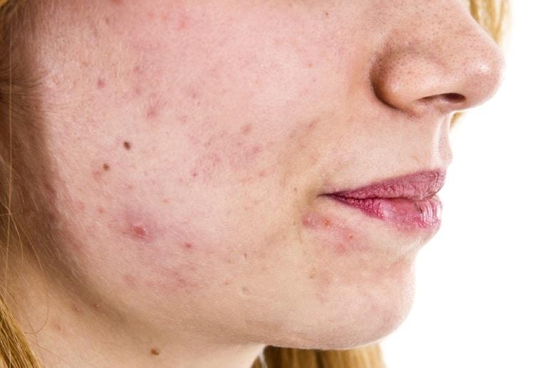 Nguyên nhân khiến bạn bị viêm tắc lỗ chân lông ở mặt tuổi 50