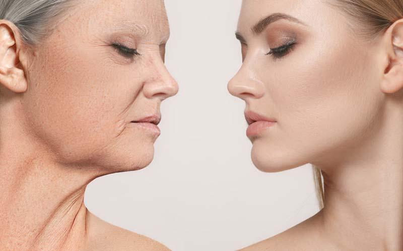 Chỉ điểm 5 lý do khiến cơ thể mất dần collagen ở tuổi 30