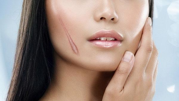 Những dấu hiệu cho biết da đang thiếu collagen cần bổ sung ngay