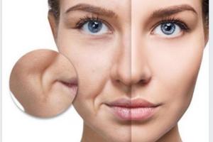 Cảnh báo hậu quả khôn lường của da mặt bị đứt gãy collagen!