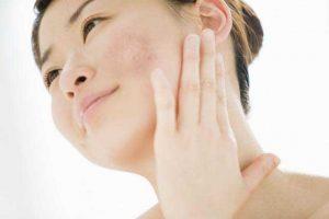 Cập nhật chu trình chăm sóc da mặt bị nám hàng ngày hiệu quả