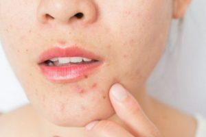 Uống collagen có nóng không? Có bị nổi mụn không?